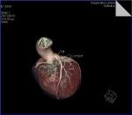 coronary_stenting