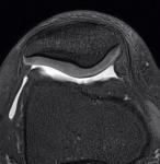 knee_MRI